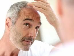 hair loss treatments for men 17 hair