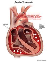 pericardial sac amicus illustration of amicus medical heart cardiac tamponade