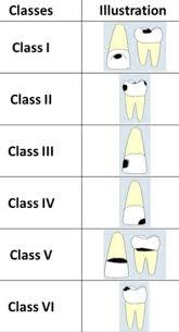 Dental Charting Dental Index Jr Online Dental Tutor