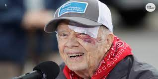 President Jimmy Carter surgery for ...