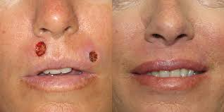 lip reconstruction skin cancer and