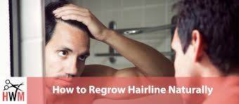to regrow your hairline naturally
