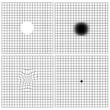 Types Of Amsler Grid Chart Diagnostic Tests Retina Group Of New York
