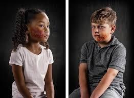 Risultati immagini per insulto aspetto fisico bambino