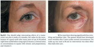 before and after of 5 years daily use of retinol vitamina retinol retina