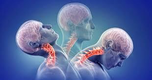 「頚髄損傷と急性期」の画像検索結果