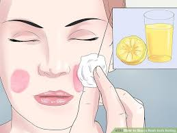 How to Stop a Rash from Itching (with Pictures) - wikiHow