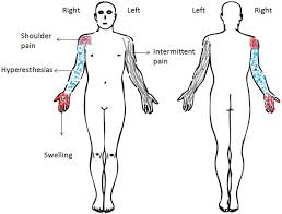 Figure 1 From Multimodal Physical Therapy Management Of A 48