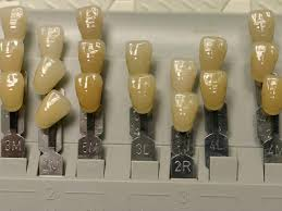 Dental Crown Color Selection Dental Blogdental Blog