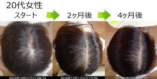 20代女性 びまん性脱毛症改善症例①熊本スーパースカルプ