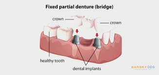 Dental Implants vs Dental Bridges. Similarities \u0026 Differences ...