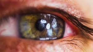 disease affect your eyes
