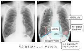 肺気腫 レントゲン