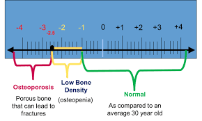 Understanding Bone Density Results American Bone Health