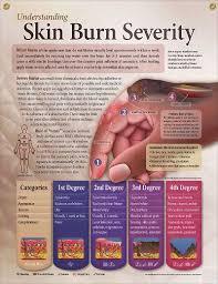 Understanding Skin Burn Severity Chart 20x26 Skin Burns