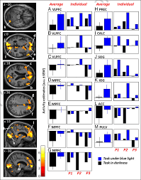 Blue Light Effect On Brain Differences In Brain Activity Between Blue Light Exposure