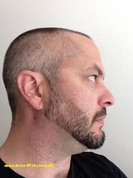 Best Men's Haircuts   Hairstyles For A Receding Hairline moreover 50 Stylish Hairstyles for Men with Thin Hair moreover 50 Classy Haircuts and Hairstyles for Balding Men as well  additionally  besides  further 50 Stylish Undercut Hairstyles for Men to Try in 2017 together with A 17 legjobb ötlet a köve ezőről  Haircuts For Receding Hairline moreover Best 25  Haircuts for receding hairline ideas on Pinterest moreover Top 10 Hairstyles for Men with Receding Hairlines additionally 50 Best Hairstyles for a Receding Hairline  Extended. on best undercut haircuts receding