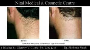 laser hair removal melbourne ni