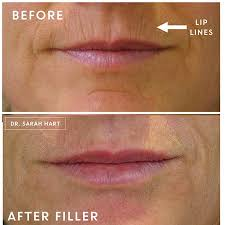 before and after photos by dr sarah hart