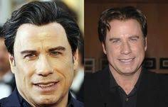 john travolta plastic surgery before and after face photos