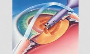 Phacoemulsification Cataract Surgery In Nava Vadaj Ahmedabad Palak