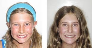 when is the best time for braces find