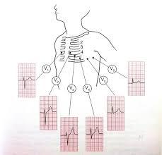 How To Read Cardiogram Chart Ecg Ekg Interpretation Oxford Medical Education