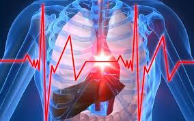 Imagini pentru infarct miocardic