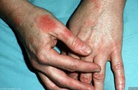 Contact allergic dermatitis | Primary Care Dermatology Society | UK