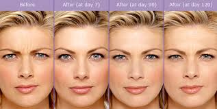 how long does botox last in forehead