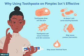 toothpaste on pimples isn t effective