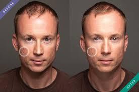 acne scar filler makeup