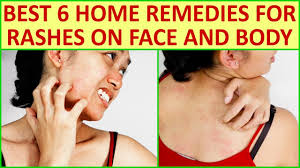 Best 6 Home Remedies For Rashes On Face And Body - YouTube