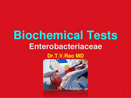 Imvic Chart Biochemical Tests In Enterobacteriaceae