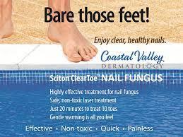 nail fungus coastal valley dermatology