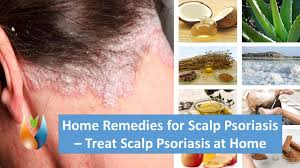 home remes for scalp psoriasis treat scalp psoriasis at home