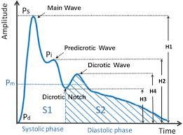 Diaphragm Based Optical Fiber Sensor For Pulse Wave