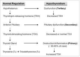 Hypothyroidism Pathophysiology Flow Chart Educate Hypothyroidism Overview