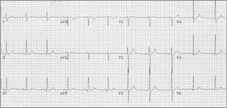How To Read An Ecg Physical Therapy Reviewer