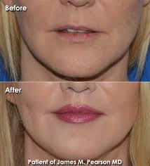 specialist corner lip lift photos