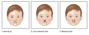 cleft lip cleft palate cleft lip cleft palate 1