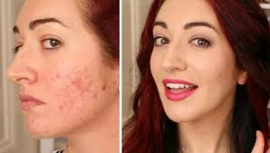 makeup tutorial how to cover acne scarring with bb cream you