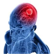 La radioterapia en el Cáncer del Sistema Nervioso Central