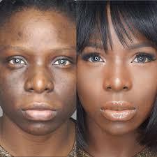 how to cover hyperpigmentation skin pigmentation using makeup shonagh scott showme makeup you 0 tweet