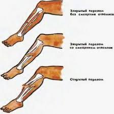Ушибы растяжения вывихи переломы Оказание первой медицинской  Для перелома характерны резкая боль припухлость кровоподтек нарушение движений в поврежденном участке тела При переломах со смещением наблюдаются