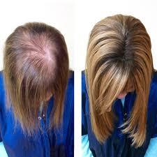 mesh integration hair system 750