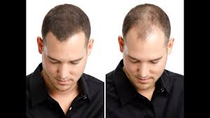 How To Regrow Your Hair Hair Regrowth For Men Women 8 Home