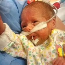 Baby Mary Jane Pierce, at centre of cannabis oil treatment battle, dies |  CBC News