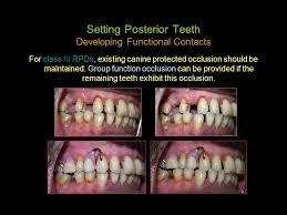 Teeth Setting Selection Arrangement Of Teeth For Rpd The Denture Base