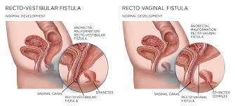 Vaginal rectal fistula repair